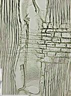 RUTACEAE Zanthoxylum lemairei