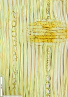 LEGUMINOSAE CAESALPINIOIDEAE Mimosoid Clade Albizia ferruginea