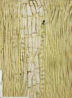 LEGUMINOSAE MIMOSOIDEAE Albizia adianthifolia