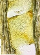 LEGUMINOSAE CAESALPINIOIDEAE Mimosoid Clade Piptadeniastrum africanum