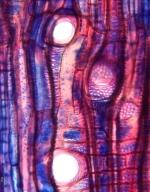 EUPHORBIACEAE Plukenetia polyadenia