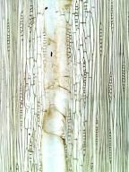 LEGUMINOSAE CAESALPINIOIDEAE Dimorphandra pullei