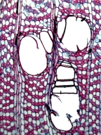 MALVACEAE BOMBACOIDEAE Eriotheca globosa