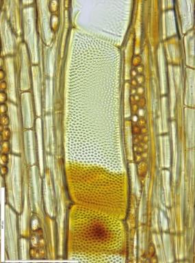 MALVACEAE DOMBEYOIDEAE Nesogordonia kabingaensis