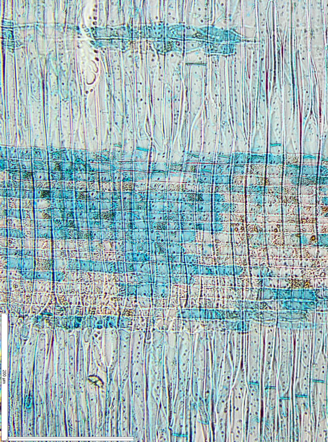 CONNARACEAE Cnestis ferruginea