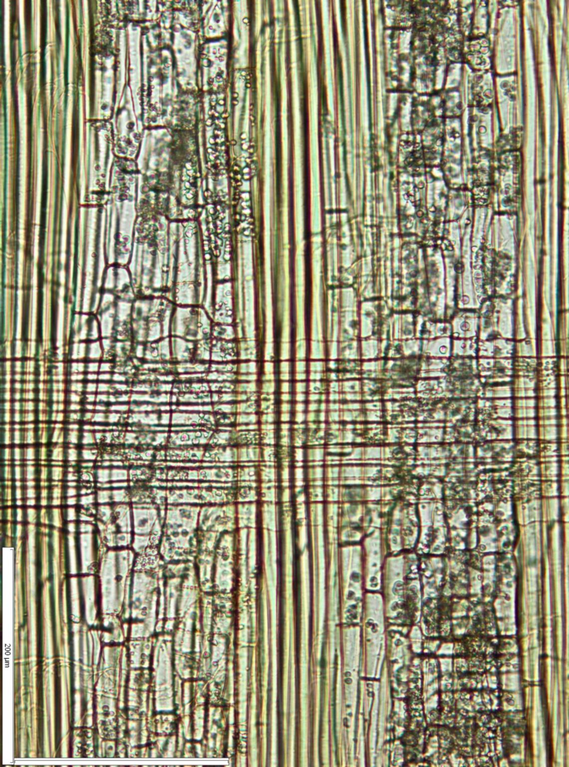 LEGUMINOSAE CAESALPINIOIDEAE Mimosoid Clade Albizia adianthifolia