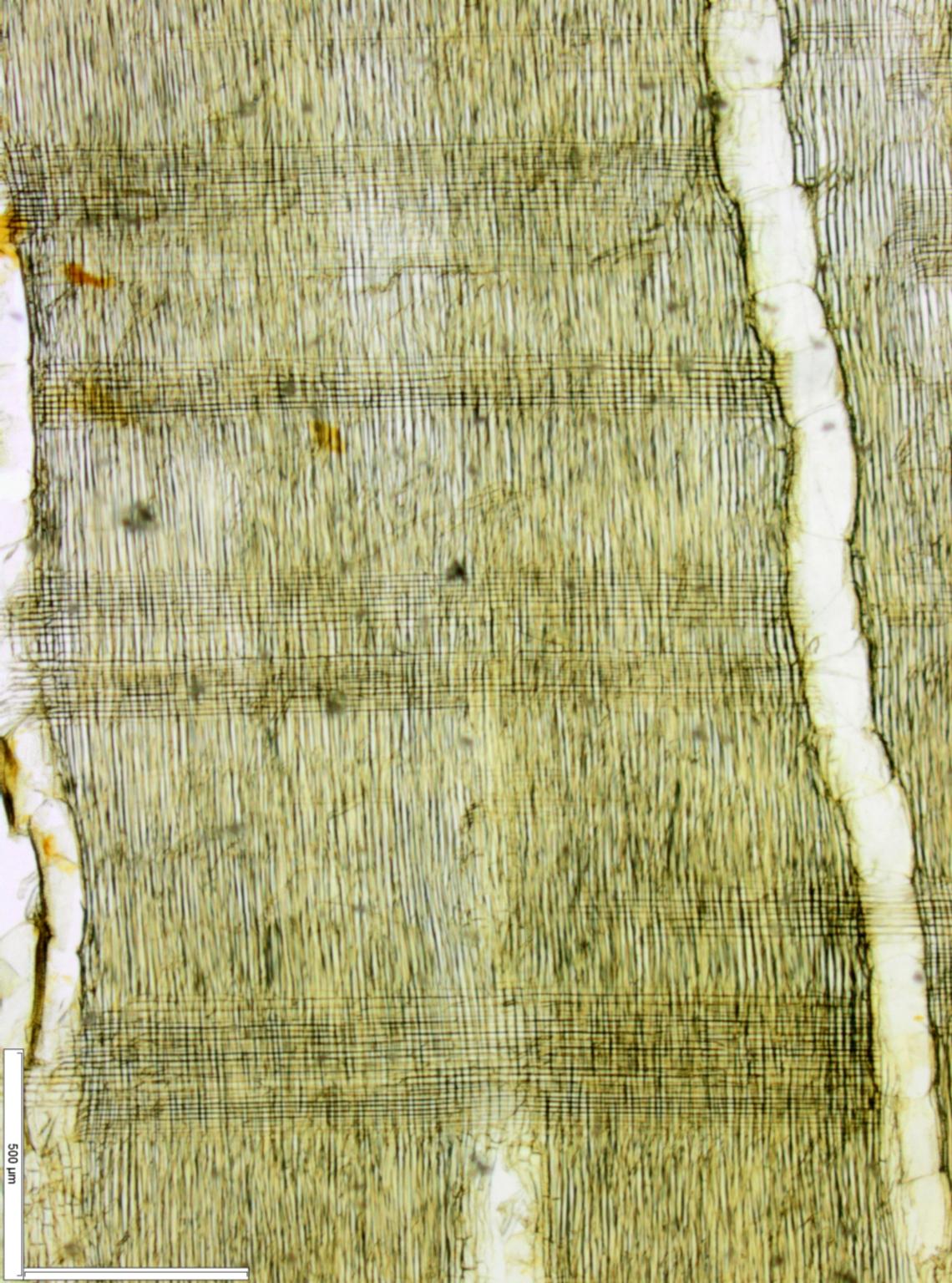 LEGUMINOSAE MIMOSOIDEAE Albizia antunesiana