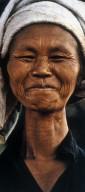 Neck Lengthening of Padaung Women