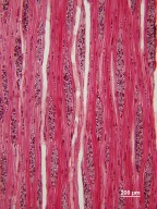 SAPINDACEAE Acer saccharum