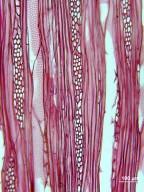 ADOXACEAE Sambucus racemosa callicarpa