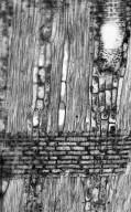 LEGUMINOSAE CAESALPINIOIDEAE Caesalpinia madagascariensis