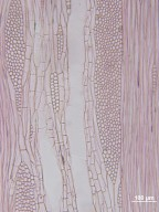 LEGUMINOSAE CAESALPINIOIDEAE Gleditsia triacanthos