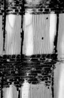 CUNONIACEAE Ceratopetalum virchowii