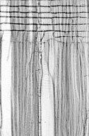 CUNONIACEAE Eucryphia jinksii
