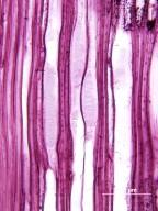 ERICACEAE Lyonia ferruginea