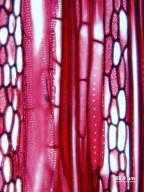 ROUSSEACEAE Abrophyllum ornans