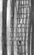 ESCALLONIACEAE Polyosma cunninghamii
