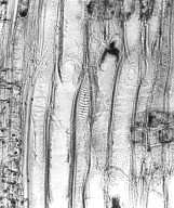 PUTRANJAVACEAE Drypetes diversifolia