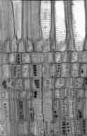 HAMAMELIDACEAE Disanthus cercidifolius