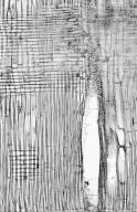 LEGUMINOSAE CAESALPINIOIDEAE Mimosoid Clade Albizia anthelmintica