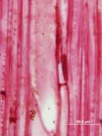 PRIMULACEAE MYRSINOIDEAE Rapanea myricifolia