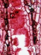 LEGUMINOSAE PAPILIONOIDEAE Erythrina herbacea