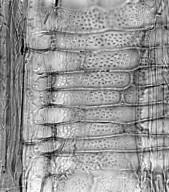 SAPINDACEAE Hypelate trifoliata