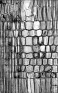 CELASTRACEAE Salacia maburensis