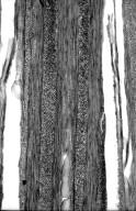 CELASTRACEAE Hylenaea comosa