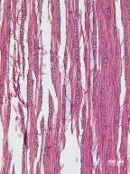 ADOXACEAE Sambucus nigra cerulea