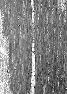 LECYTHIDACEAE Eschweilera congestiflora