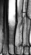 RUBIACEAE Lasianthus rhinocerotis