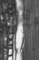 CELASTRACEAE Maytenus acuminata