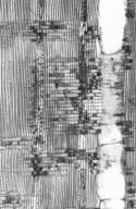 CELASTRACEAE Lophopetalum toxicum