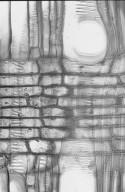 CUNONIACEAE Anodopetalum biglandulosum