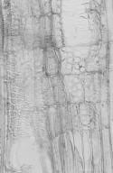 ELAEOCARPACEAE Elaeocarpus polydactylus