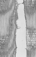 ELAEOCARPACEAE Elaeocarpus tuberculatus