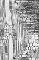 PARACRYPHIACEAE Quintinia sieberi