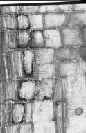ACHARIACEAE Hydnocarpus heterophylla