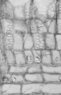 ACHARIACEAE Scottellia coriacea