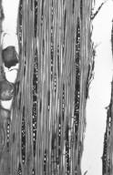 HYPERICACEAE Vismia guianensis
