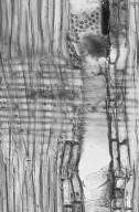 LEGUMINOSAE CAESALPINIOIDEAE Cercis canadensis