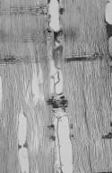 LEGUMINOSAE CAESALPINIOIDEAE Mimosoid Clade Acacia acuminata