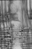 LEGUMINOSAE CAESALPINIOIDEAE Mimosoid Clade Acacia aulacocarpa