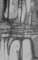 LEGUMINOSAE CAESALPINIOIDEAE Mimosoid Clade Albizia gummifera