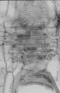 LEGUMINOSAE CAESALPINIOIDEAE Mimosoid Clade Archidendropsis xanthoxylon