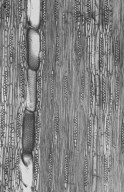 LEGUMINOSAE MIMOSOIDEAE Amblygonocarpus andongensis