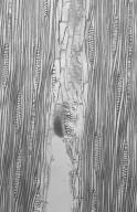 LEGUMINOSAE CAESALPINIOIDEAE Mimosoid Clade Cathormion umbellatum