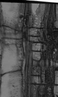 MELASTOMATACEAE Pternandra coerulescens