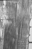 LEGUMINOSAE PAPILIONOIDEAE Castanospermum australe